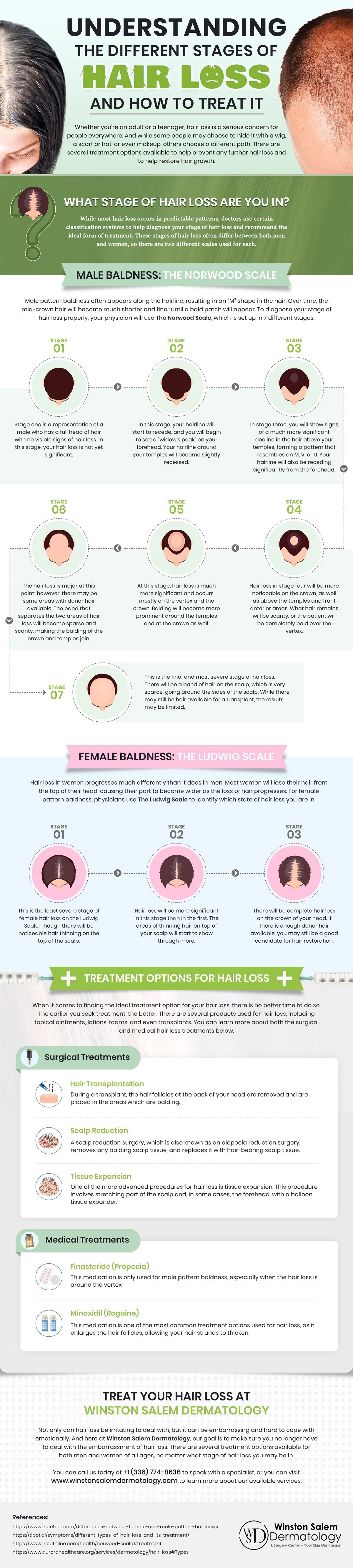 Understanding the Different Stages of Hair Loss and How to Treat It #infographic