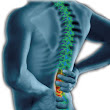 What Causes and How to Cope with Back Pain?