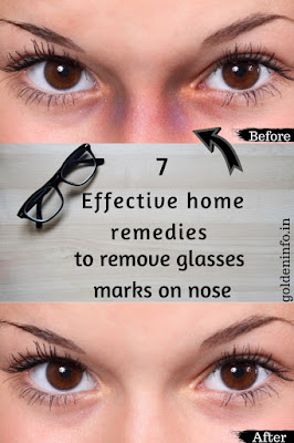 How to remove glasses marks on the nose