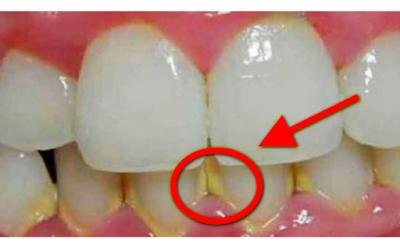 Ini Dia Cara Ampuh Hilangkan Plak Gigi Dalam 5 Menit Tanpa Harus Ke
