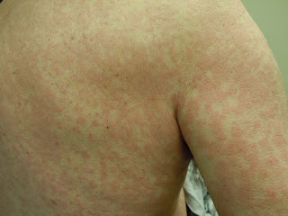 Morbilliform rash Pictures, Definition, Symptoms, Causes, Treatment