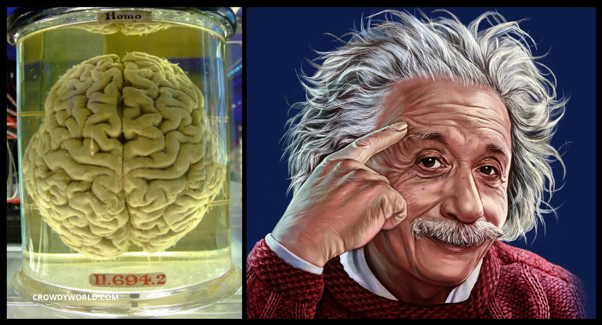 Why Einstein Brain Is Different And It Is Still Kept In Museum?