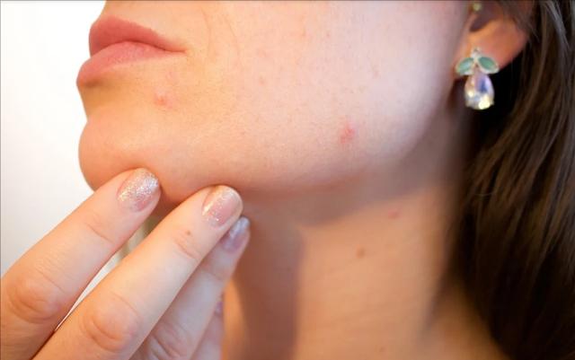 Acne and Sex discrimination