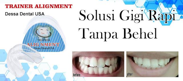 Jual Teeth Trainer