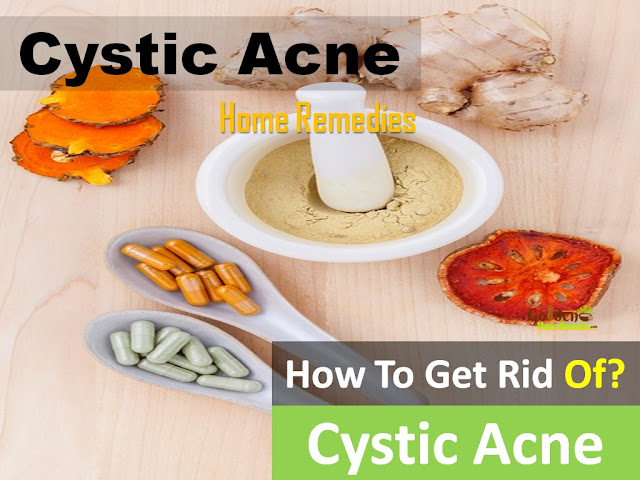 How To Get Rid Of Cystic Acne, Home Remedies For Cystic Acne, Cystic Acne Treatment, Cystic Acne Home Remedies, How To Treat Cystic Acne, How To Cure Cystic Acne, Cystic Acne Remedies, Remedies For Cystic Acne, Cure Cystic Acne, Treatment For Cystic Acne, Best Cystic Acne Treatment, Cystic Acne Relief, How To Get Relief From Cystic Acne, Relief From Cystic Acne, How To Get Rid Of Cystic Acne Fast,