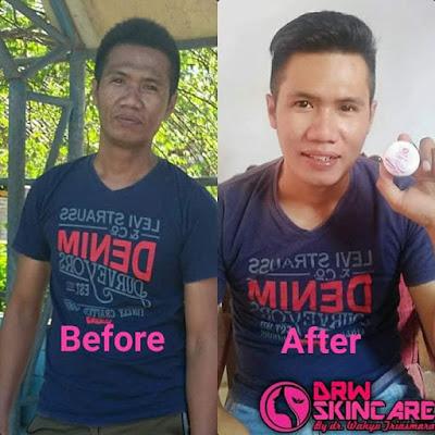 Drw Skincare Untuk pria