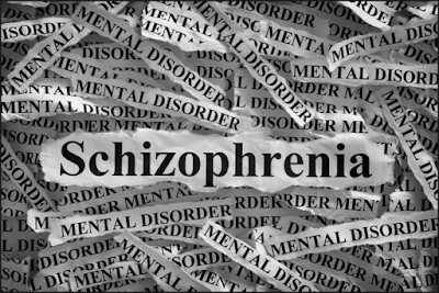 http://www.pusatmedik.org/2016/09/skizofrenia-definisi-penyebab-dan-pengobatan-serta-gejala-klinis-penyakit-skizofrenia-dan-gangguan-psikotik-kronik-lain-menurut-ilmu-kedokteran.html