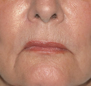daily-lip-care-routine-wrinkles