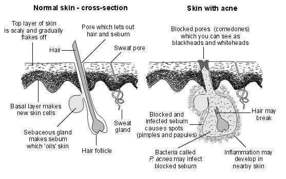 Normal skin vs acne skin