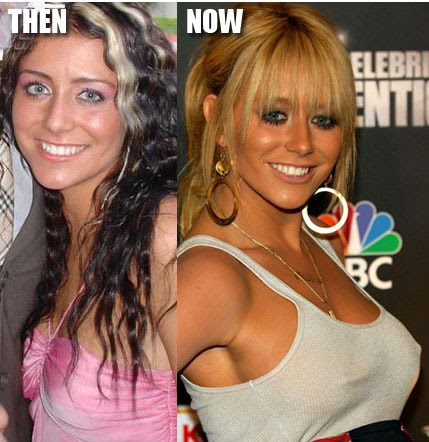 Aubrey O day Plastic Surgery Before and After Breast Implants and     In high school  O Day was an A cup  But after reaching stardom  she is  busty C cup  Her implants look great and appear to have been placed over  the muscle