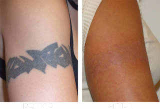 http://drparthasarathi.com/tatto-removal-with-laser/