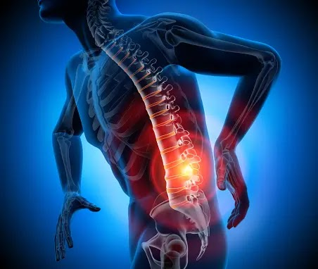 6 Back muscle spasm causes and their treatment