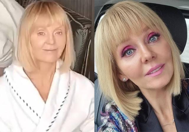 Валерия показала, как выглядит без макияжа, и настолько постаревшее лицо шокировало даже фанатов