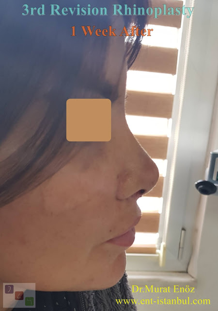 1 week after - 3rd Revision Rhinoplasty - Nostril Stenosis and Pollybeak Deformity - Complication Nose Surgery