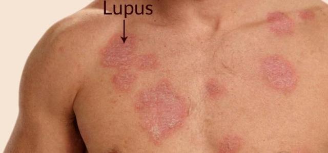 Obat Penyakit Lupus Paling Ampuh