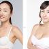 Phẫu thuật nâng ngực nội soi an toàn cho chị em phụ nữ