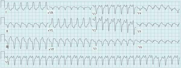 Wide Complex Tachycardia ECG