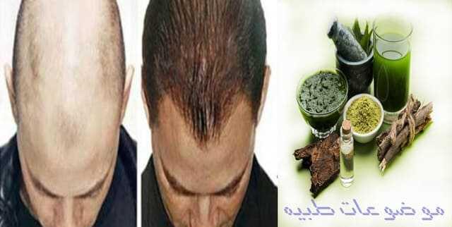 خلطات لمنع تساقط الشعر وتقويته