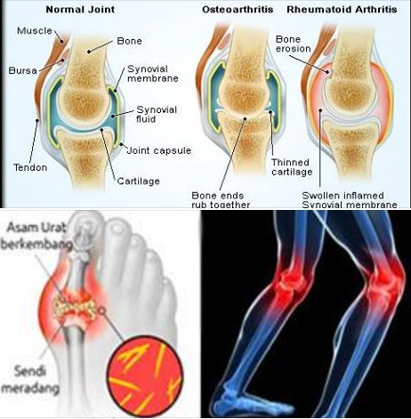 essays on rheumatoid arthritis There are over 200 types with the main types being osteoarthritis and rheumatoid rheumatoid arthritis popular essays the effects that.