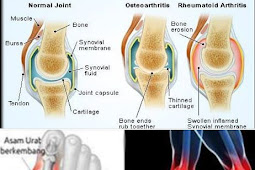 Rheumatoid Arthritis, Gout (Uric Acid) and Osteoarthritis, What's the Difference?