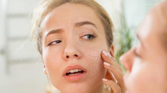 Tips mengatasi kulit wajah berminyak