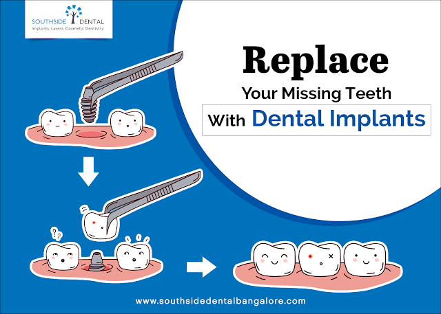 https://www.southsidedentalbangalore.com/dental-implants