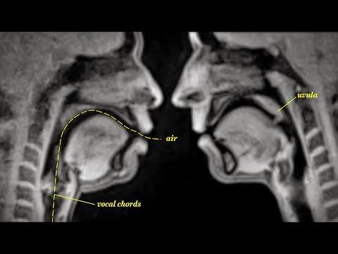 Diafores-ka8hmerines-sunh8eies-mesa-apo-to-fako-magnhtikhs-tomografias