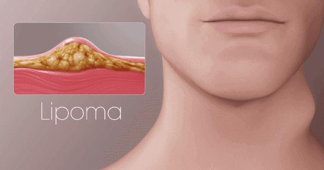 ما هو الورم وما هي اسبابه وطرق علاجه وكيفية الوقاية منه
