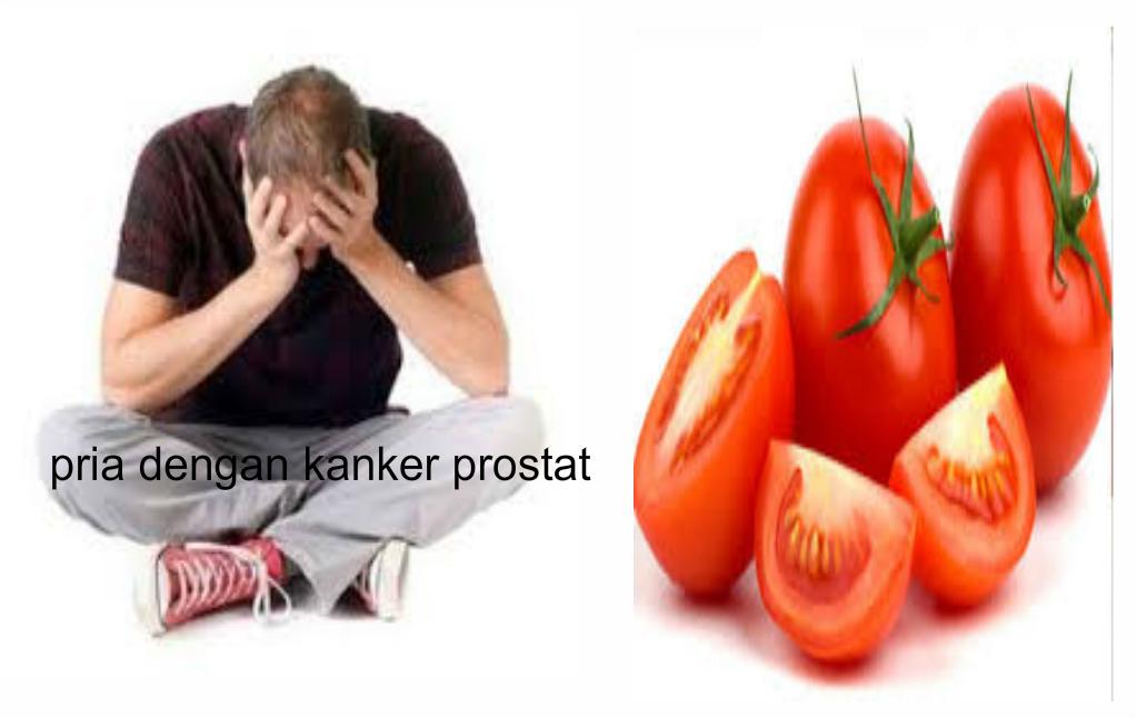 Manfaat Tomat Bagi Penderita Kanker Prostat