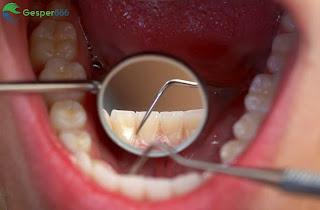Cara Membersihkan Karang Gigi Secara Alami