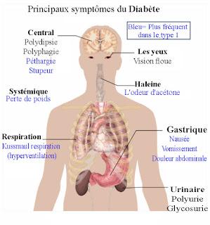 Principaux symptômes du Diabète