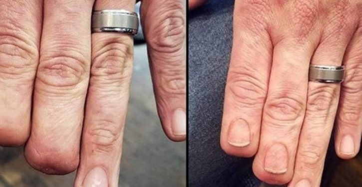 A Tattooist Restores Nails For A Man Who Has Lost Two Fingers