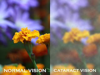 Cataract vision- before after