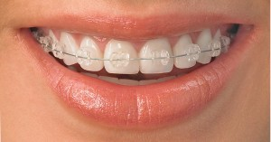 http://i2.wp.com/1.bp.blogspot.com/-EfMs8Sp7Ghc/TrtjK1--n9I/AAAAAAAAA2c/kxYlZ88XBgs/s1600/mouth-braces-300x157.jpg?resize=300%2C157