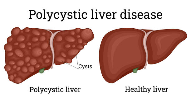 Polycystic liver disease is a hereditary condition characterized by multiple cysts of various sizes scattered throughout the liver
