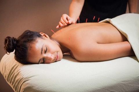 Acupuntura, Psoriasis y Beneficios | acupuntura psoriasis