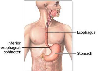 gerd with esophagus