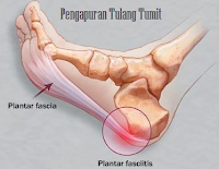 http://gerakancintafajar.blogspot.co.id/2017/01/pengobatan-herbal-pengapuran-tulang.html