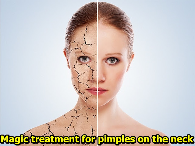 Magic treatment for pimples on the neck