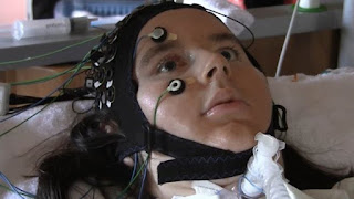 Researchers Develop Wearable To Help 'Locked-In' ALS Patients Communicate
