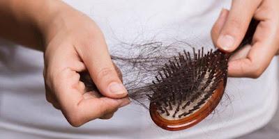 Simak 5 Penyebab Rambut Rontok Yang Harus Dihindari