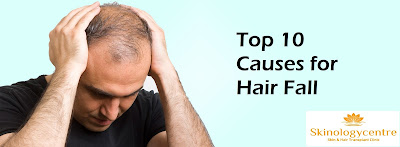 Man wearing black tshirt is worried about hair fall and it's top causes