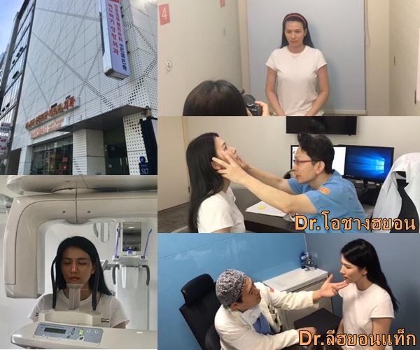 รีวิว ★ แก้แกนจมูกเบี้ยว ตาเศร้า และโครงหน้าไม่เท่ากัน EP.1 วันผ่าตัด