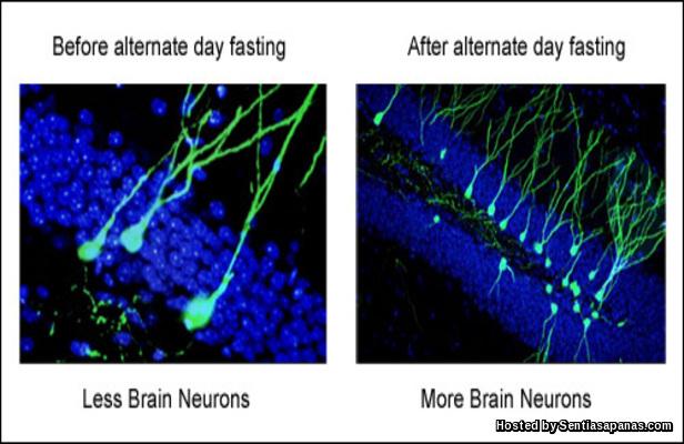 Puasa Cegah Kerosakan Otak