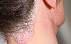 Cara mengobati penyakit gudig dan eksim di kepala