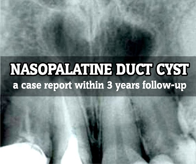 PDF: Nasopalatine duct cyst: a case report within 3 years follow-up