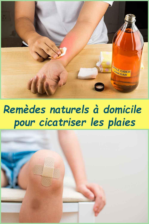 Remèdes naturels à domicile pour cicatriser les plaies