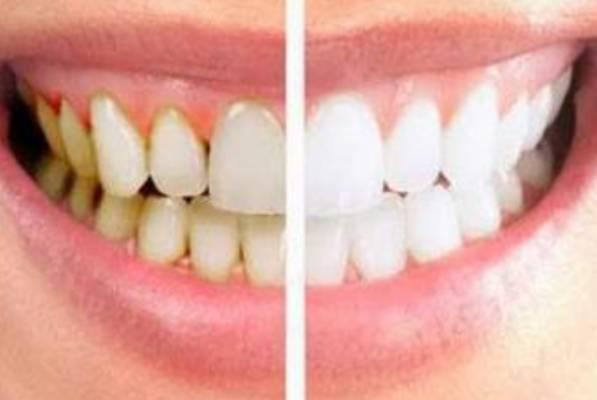 15 Cara Membersihkan Karang Gigi di Rumah Dengan Bahan Alami