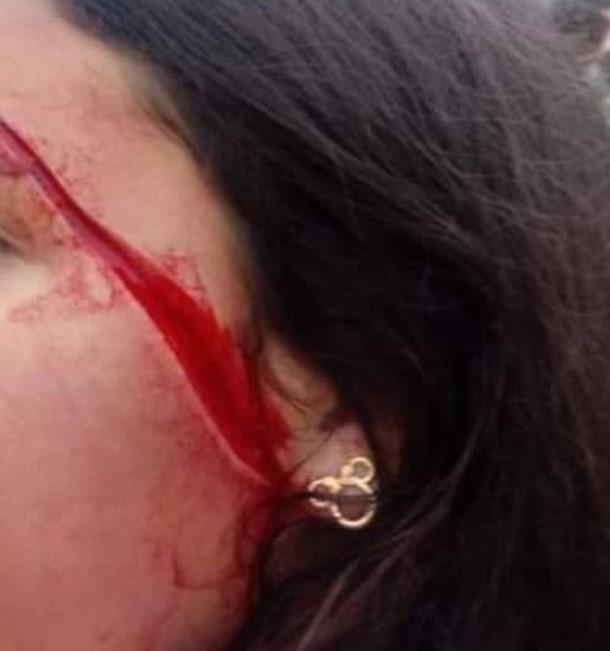 Paraná: Criança de 11 anos faz corte profundo no rosto de amiga em ônibus escolar