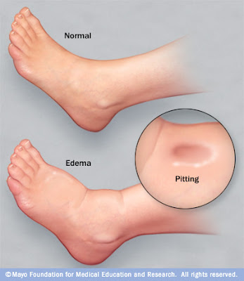 Edema Sign Symptoms And Causes Pitting Edema Salt